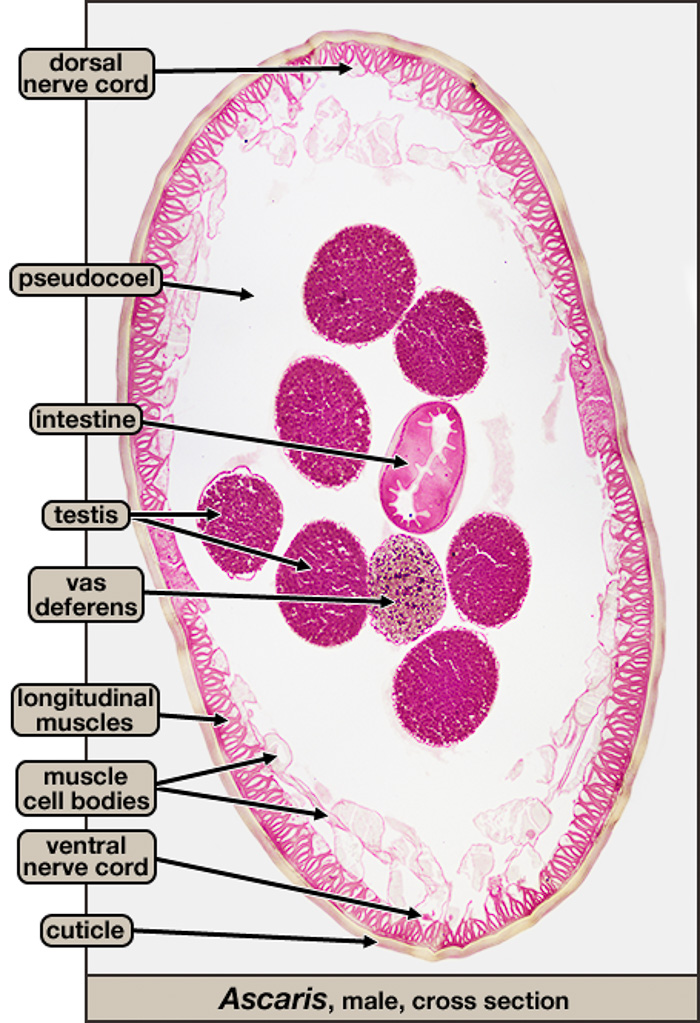 Ascaris cross section, male